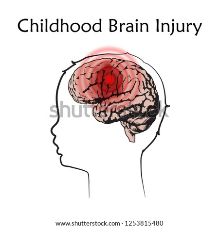 Braim injury in infants, childhood. Vector medical illustration. Kid, baby. White background, line silhouette of child head, anatomy flat image of damaged human brain.
