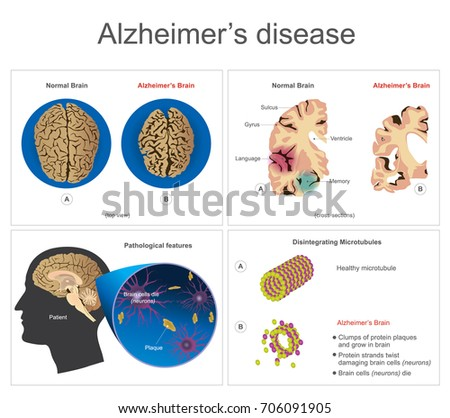 Brain cells die, neuron diseased, certain areas of brain shrink memory loss or changes in memory for people age 65 and up at risk could affect younger people. Info graphic vector.