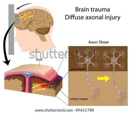 Brain trauma with axon shear (car accident, shaken baby syndrome,..)