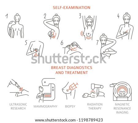 Breast cancer, medical infographic. Diagnostics, symptoms, self examination. Women`s health set. Vector illustration ストックフォト ©