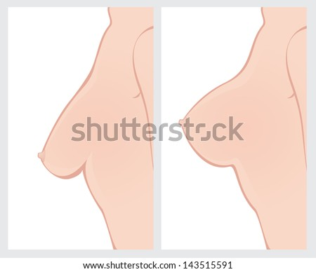 Breast before after lingirie