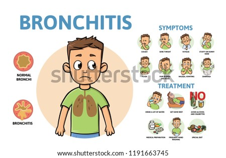 Bronchitis disease symptoms and treatment. Infographic poster with text and cartoon character. Flat vector illustration, horizontal.
