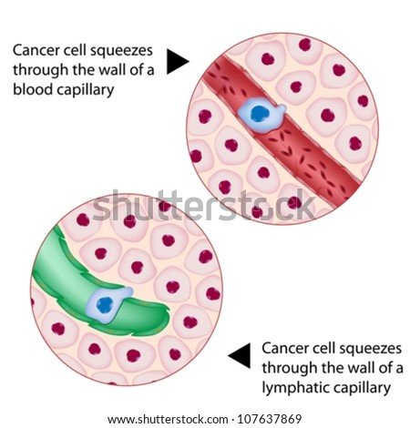 Cancer cell squeezes through blood and lymph vessel during metastasis