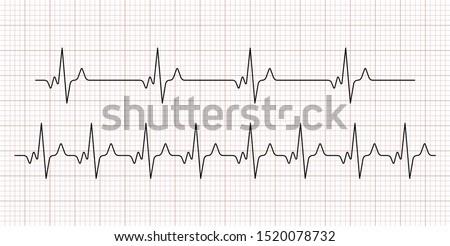 Cardiogram. Heart beat. Heartbeat line. Electrocardiogram. Vector  Stock photo ©