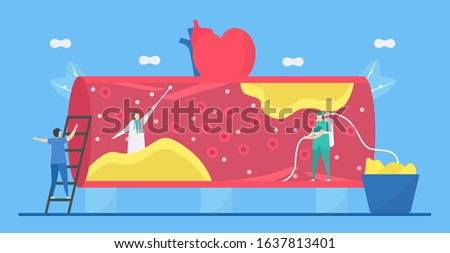Cardiology vector illustration. Atherosclerosis is heart disease that plaque builds up inside arteries. Blood vessel is narrow and hard because fat, cholesterol, and calcium.