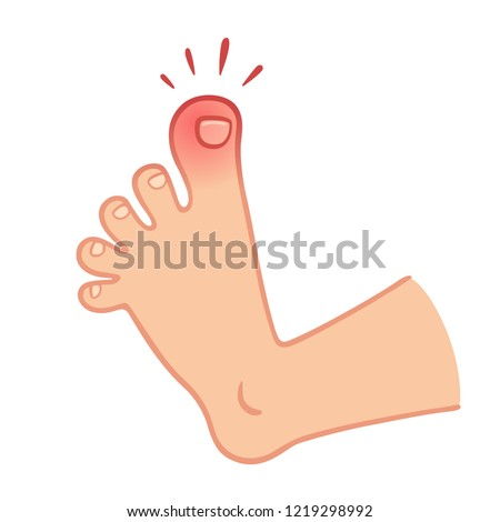cartoon foot with swollen