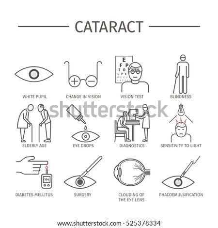 Cataract. Symptoms, Treatment. Line icons set. Vector signs for web graphics.