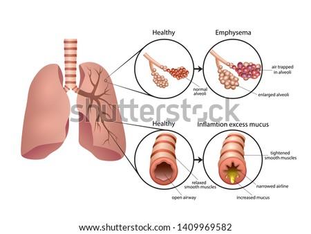 Chronic Obstructive Pulmonary Disease illustration Stock photo ©