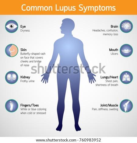 common lupus symptoms vector logo icon illustration