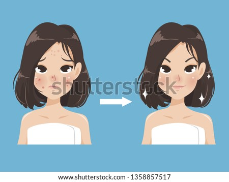 Compare the development of the beauty of young women.Acne becomes a beautiful face without acne and looks younger.