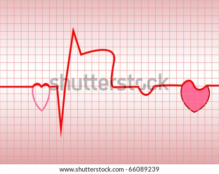 Myocardial Infarction Ecg. myocardial infarction,