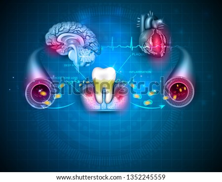 Complications of gum disease Periodontitis.  Bacteria from inflamed gums can enter in to the blood stream and affect other organs such as heart and brain. Beautiful abstract blue design poster.