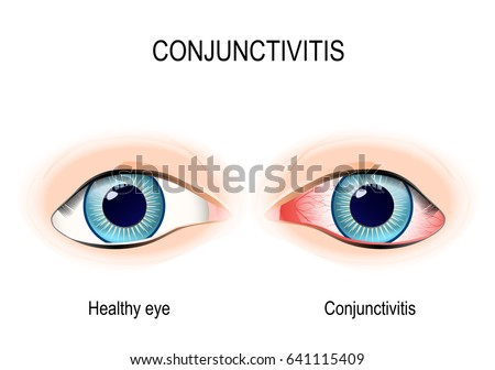 conjunctivitis healthy eye and