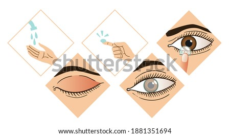 Contact lens infographic. Instruction how to put on lenses. 5 steps wash your hands, take a lens, check the position of the lens. Carefully insert the lens. Design of the brochure