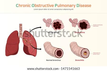 COPD (Chronic Obstructive Pulmonary Disease) Stock photo ©