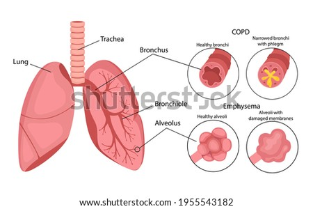 COPD (chronic obstructive pulmonary disease). Emphysema of the lungs. Lung disease. Infographics. Vector illustration in cartoon style isolated on white background. Stock photo ©