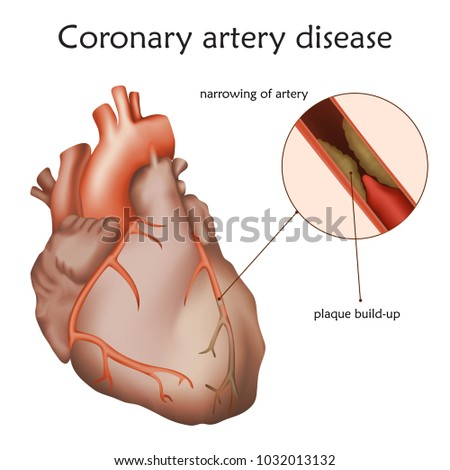 Coronary artery disease. Blocked artery, damaged heart muscle. Anatomy illustration. Colorful image, white background.