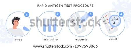 Covid-19 Rapid Antigen test procedure Infographic. A doctor takes nasal swab from male patient. Coronavirus swap sample in lysis buffer, strip with reagents and result with antigen molecules. Vector. Photo stock ©