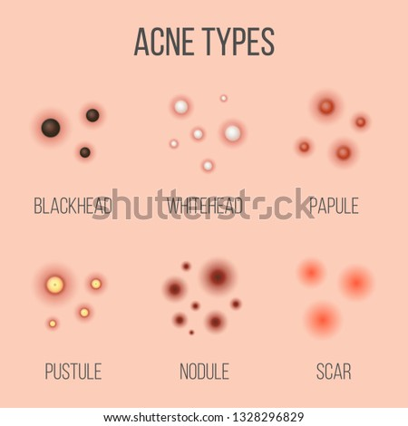 creative vector illustration types of acne, pimples, skin pores, blackhead,  whitehead,