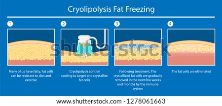 cryolipolysis fat freezing procedure cold treatment non invasive medication reduce temperature break down fat cells removal cosmetic surgery adipose  liposuction Coolsculpting