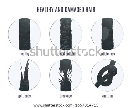 Damaged hair surface under microscope. Hair follicle structure condition closeup vector set. Problem of split ends, breakage, knotting, raised cuticle and loss of cuticle. Trichology medical concept.