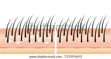 Dandruff on hair before and after (vector),hair scalp. Treatment of dandruff on the scalp. compare normal and abnormal hair on the scalp for advertisement ,poster, beauty clinic , cosmetic and banner.