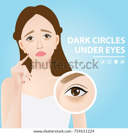 dark circles under eyes vector