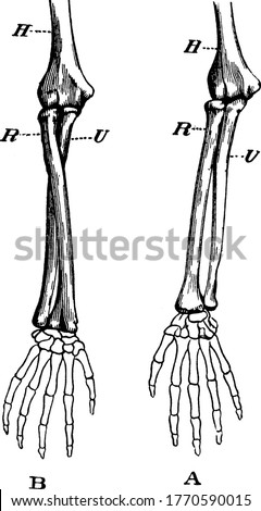 Demonstration of the movement of a pivot joint representing, arm in supination (palm uppermost), arm in pronation (back of hand upward), humerus, radius and ulna, respectively, vintage line drawing Stockfoto ©