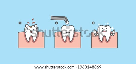 Dental cartoon Step of restoring cavity tooth by filling tooth illustration cartoon character vector design on blue background. Dental care concept. Сток-фото ©