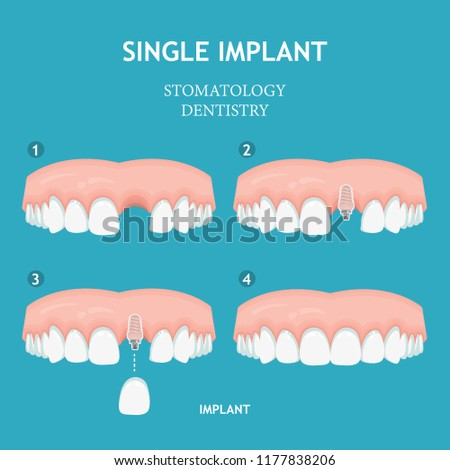 Dental concept. Dentistry and stomatology poster. Implant.
