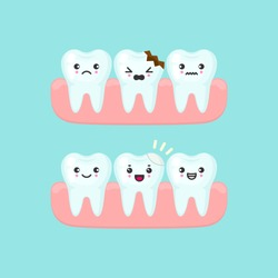 Dental filling on a broken tooth stomatology concept. Cute cartoon vector teeth isolated illustration