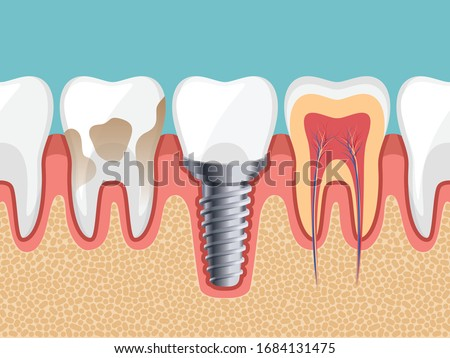 Dental Implant, Dirty tooth, Healthy tooth, Tooth inside, Human teeth, Vector illustration.