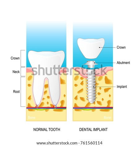 Dental Implant Normal Human Tooth And Prosthesis Dental Anatomy