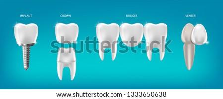 Dental prosthetics vector illustration, implant, crown, bridge, veneer. 3d Realistic dental Banner. Teeth Procedure of Implant Veneer bridge Crown Restoration.