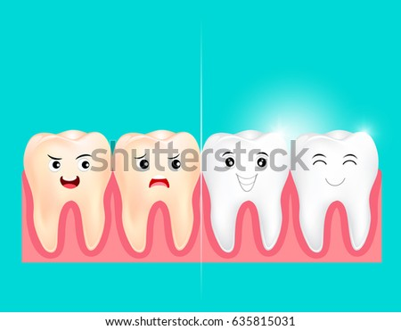 dental veneers on a human tooth