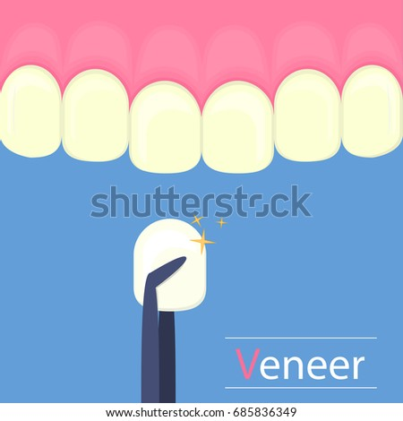 Dental veneers on a human tooth. Cartoon teeth .Stock vector illustration.Concept dentistry clinic.Dental care equipment sign, medical elements. Health care symbol