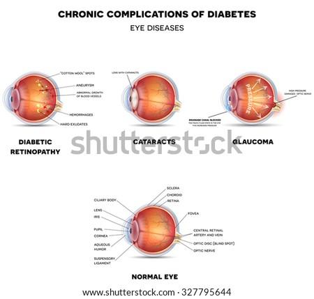 diabetic eye diseases diabetic