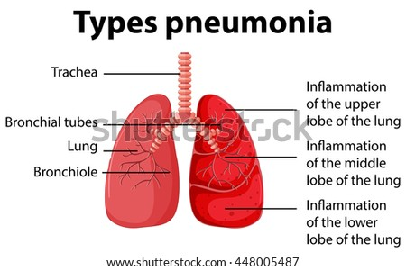 pneumonia of the lungs diagram download free vector art, stock Simple COPD Diagram