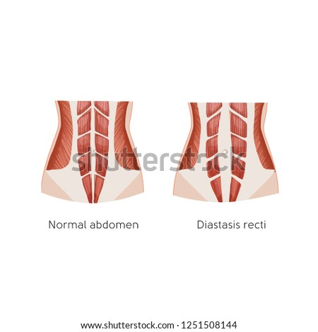 Diastasis recti. Abdominal muscle diastasis after pregnancy. Abdominal problems. Anatomy vector illustration. Stock photo ©