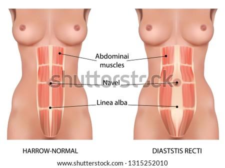 Diastasis recti also known as abdominal separation. Stock photo ©