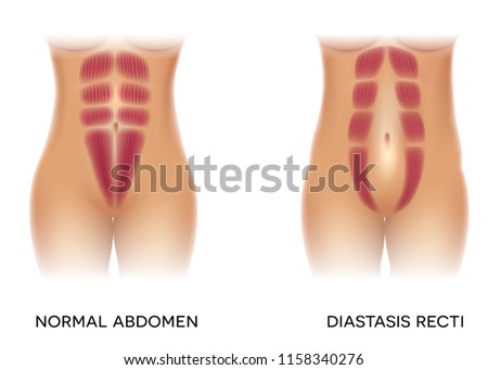 Diastasis recti also known as abdominal separation, it is common among pregnant women. There is a gap between the rectus abdominis muscles. Stock photo ©