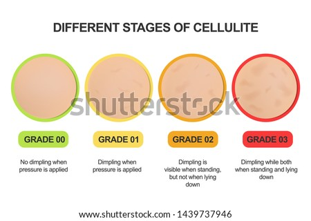 Different stages of cellulite. Grading scale. Treatments. Сток-фото ©