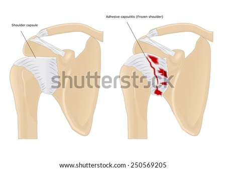 disease of the shoulder: adhesive capsulitis (common name: frozen shoulder)