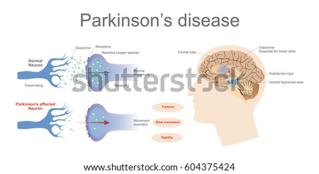 Shutterstock Dopamine levels in a normal and a Parkinson's Affected neuron. Graphic Vector art, Illustration.