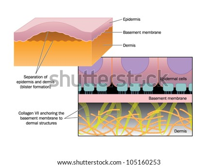 Drawing of blister formation in skin disease such as Epidermolysis bullosa, where the epidermis separates from the basement membrane and dermis