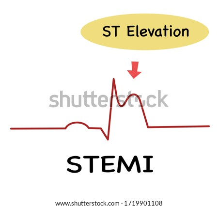 ECG in STEME (ST Elevation Myocardial Infraction),Diagnosis ECG,ST -segment elevation is an abnormality detected the 12 lead ECG Photo stock ©