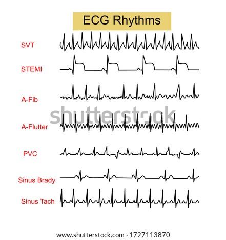 ECG Rhythms ,Supraventricular tachycardia(SVT),ST Elevation Myocardial infraction(STEMI),Atrial Fibrillation(AF),Premature Ventricular Contraction(PVC),Sinus Bradycardia ,Sinus Tachycardia Photo stock ©