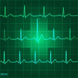 Electrocadiogram (ECG) on green graph background with medical sign
