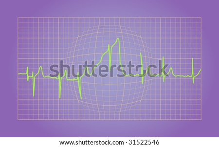 Electrocardiogram of a Healthy Heart