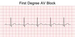 Electrocardiogram show first degree AV block pattern. ECG. EKG. Vital sign. Heart beat. Life line. Medical healthcare symbol.
